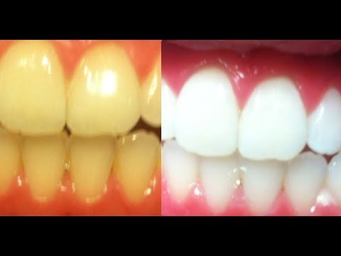 How to whiten teeth fast and instantly at home, how to bleach teeth naturally and safely at home - YouTube