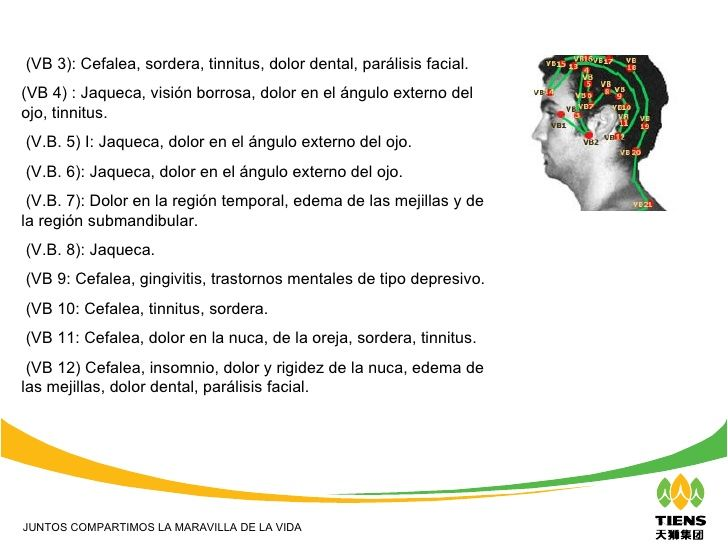 Bienvenidos a: (VB 3): Cefalea, sordera, tinnitus, dolor dental, parálisis facial. (VB 4) : Jaqueca, visión borrosa, dolor...
