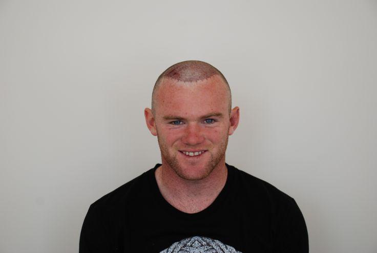 Wayne Rooney | Harley Street Hair Clinic