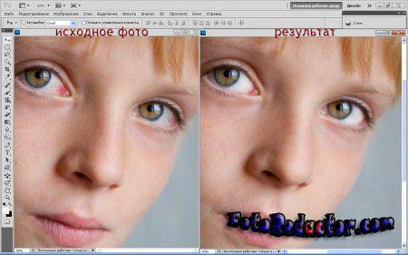 Отбелить белки в фотошопе и убираем красные глаза