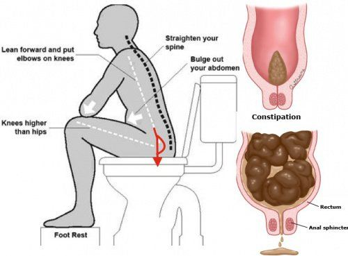 """How To Poop When You Can't Without Any Laxatives, Let's talk about constipation. We've all experienced it—the bloating, the inability to go """"Number Two"""" no"""
