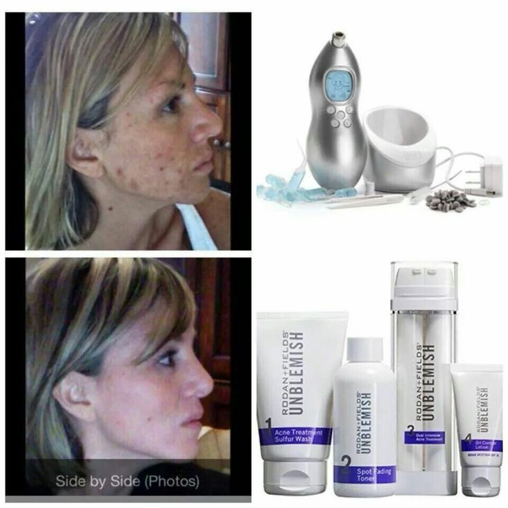 Unblemish regimen. If you suffer from acne, this is for you. Message me!