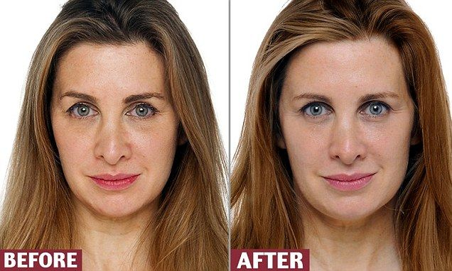 In the run-up to her 47th birthday, TANITH CAREY tried to boost her collagen levels and turn back time. So what treatments worked?