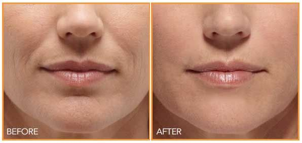 Remove wrinkles around the mouth and get beautiful smooth smiile