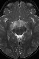 pilocytic astrocytoma optic - Google Search
