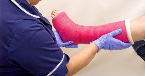Also referred to as an ankle fracture, a broken ankle involves damaged bones and ligaments in the ankle joint. Symptoms include severe pain, swelling, bruising and inability to carry weight on the foot. A broken ankle can take several weeks or months to heal. During recovery, you will need to stay off the ankle to ensure proper healing. Although...