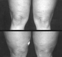 Tumescent Liposuction ~ Top, preoperative view. Bottom, postoperative view