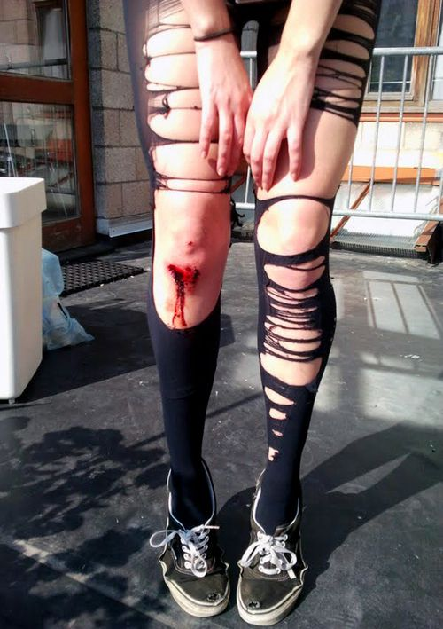 scraped knees and ripped tights
