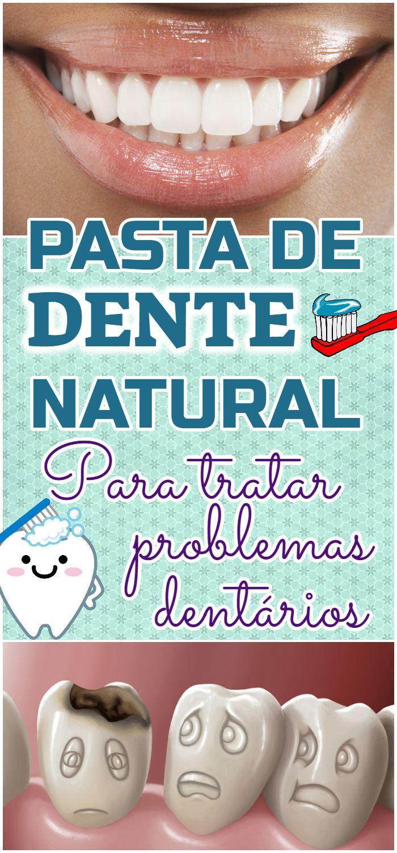 Pasta De Dente Caseira Que Elimina Caries E Clareia Os Dentes Em 3
