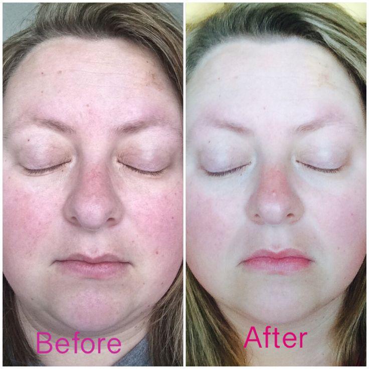 Verage Skin Care Reviews