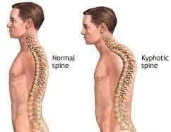 Κύφωση και χρόνιος πόνος στην πλάτη – αντιμετώπιση. Διαβάστε περισσότερα: http://www.andreasmorakis.gr/κύφωση-πόνος-στην-πλάτη/