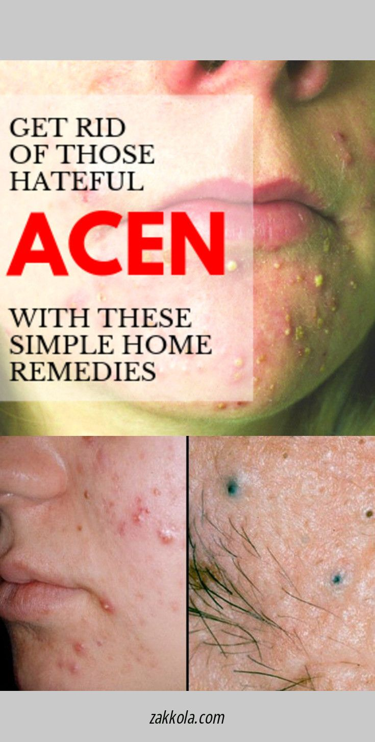 How to Draw Out a Pimple – Home Remedies for Cysts…