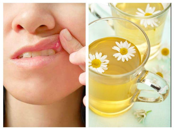 Ulcerațiile bucale sunt leziuni mici și dureroase apărute la nivelul buzelor și a cavității bucale.