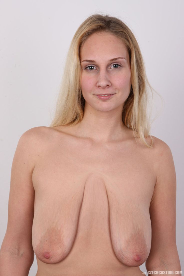 saggy, ugly, empty, tits