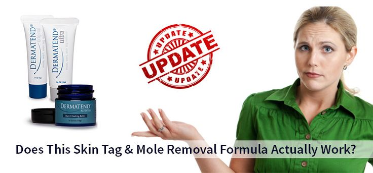 Dermatend Reviews: A Solid Skin Tag & Mole Removal Cream? - http://www.comforternetwork.org/dermatend-reviews-mole-removal-cream/