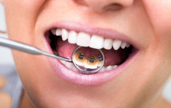 Incognito Braces Services In Dubai Dental Braces Lingual Braces Affordable Dentist