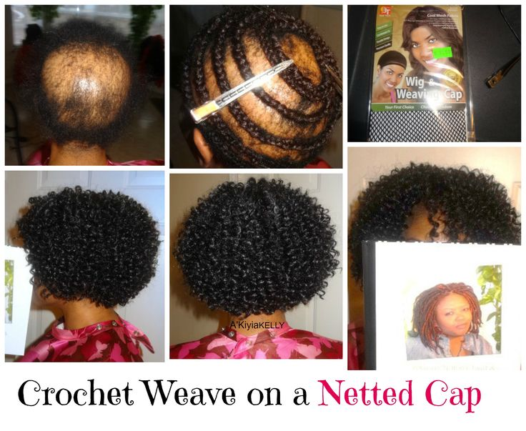 Alopecia Hair Styles: 327 Best Hair Products Images On Pinterest