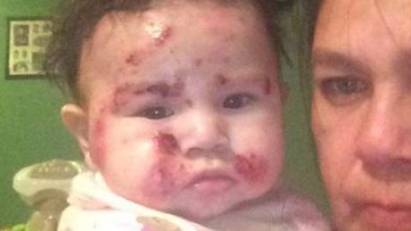 Federal Health Minister Jane Philpott says an outbreak of skin lesions among children at Kashechewan First Nation in northern Ontario is not the result of the community's water, as some have suggested.