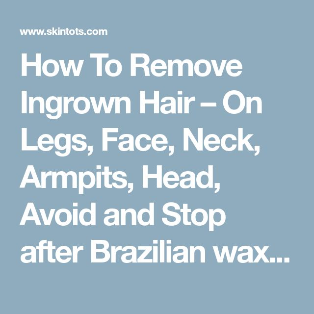 How To Remove Ingrown Hair – On Legs, Face, Neck, Armpits, Head, Avoid and Stop after Brazilian waxing, Shaving