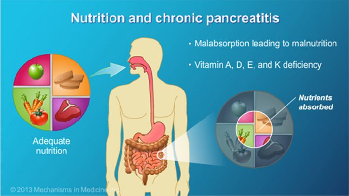 Ensuring adequate nutrition is possibly the most important treatment goal. When the pancreas doesn't work properly, it affects the body's ability to get essential nutrients from food.  slide show: management and treatment of chronic pancreatitis. this slide show describes the goals of management and treatment of chronic pancreatitis.