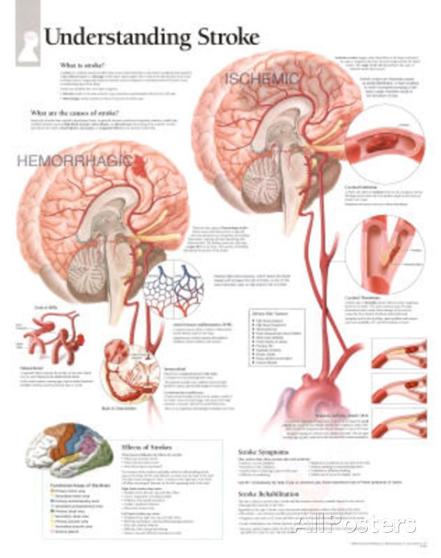 37 best stroke images on Pinterest | Health, Stroke recovery and Anatomy