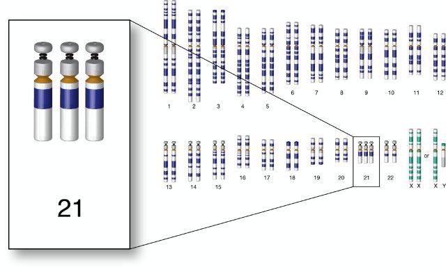 Suprimida la copia extra del cromosoma que produce el Síndrome de Down