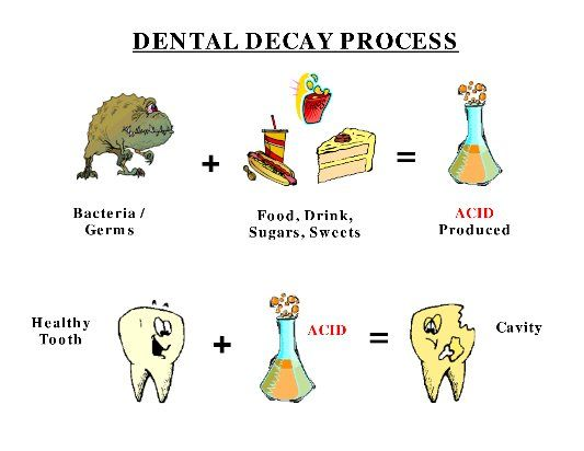 28 Best Information For Healthy And Clean Teeth Images On