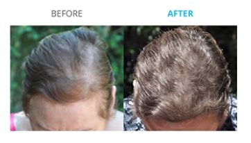 Proof that Theradome laser hair therapy works!