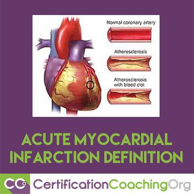 1000 ideas about myocardial infarction on pinterest nursing