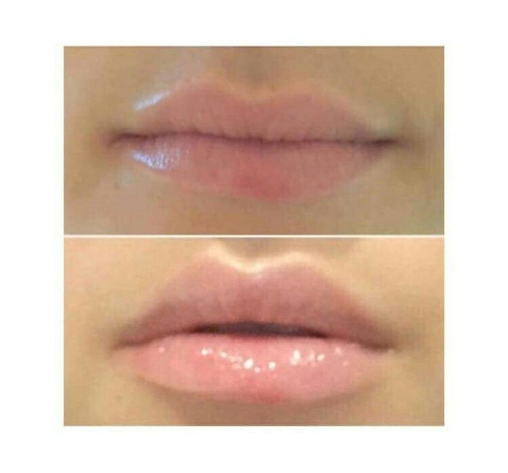 Plumping lip gloss  Do you want plump lips without the needles? I am loving the effects of tje plumping lol gloss it stimulates the collagen production to naturally enhance the Cupid's bow.   If you use it twice (2) a day for 28 days you could have naturally more luscious lips   Inbox me for more information or to order - can also leave an email or number and I will contact you.