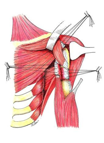 another view of the insertion of the lats into the humerus