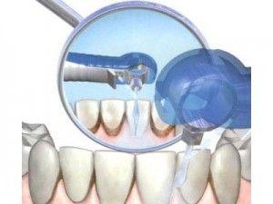 Укрепление эмали зуба, чистка зубов, чистка и лечение зубных отложений