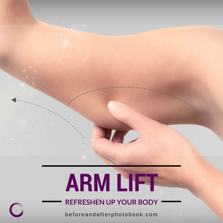 Arm stretching surgery is a genetic predisposition, surgery that we have applied to the sagged ones, where the elasticity of the arm's skin has been lost after weight gain in structural or excessive amounts.  /// For more information 📲 WhatsApp: +90 5434704709 ///  #plasticsurgery #armlift #brazilianbuttlift #bblistanbul #brazilianbuttlifts #bbl #buttock #buttocksinjection #buttockaugmentation #buttocksaugmentation #buttimplant #fatinjection #buttlift #buttlifting #PlasticSurgeryİstanbul