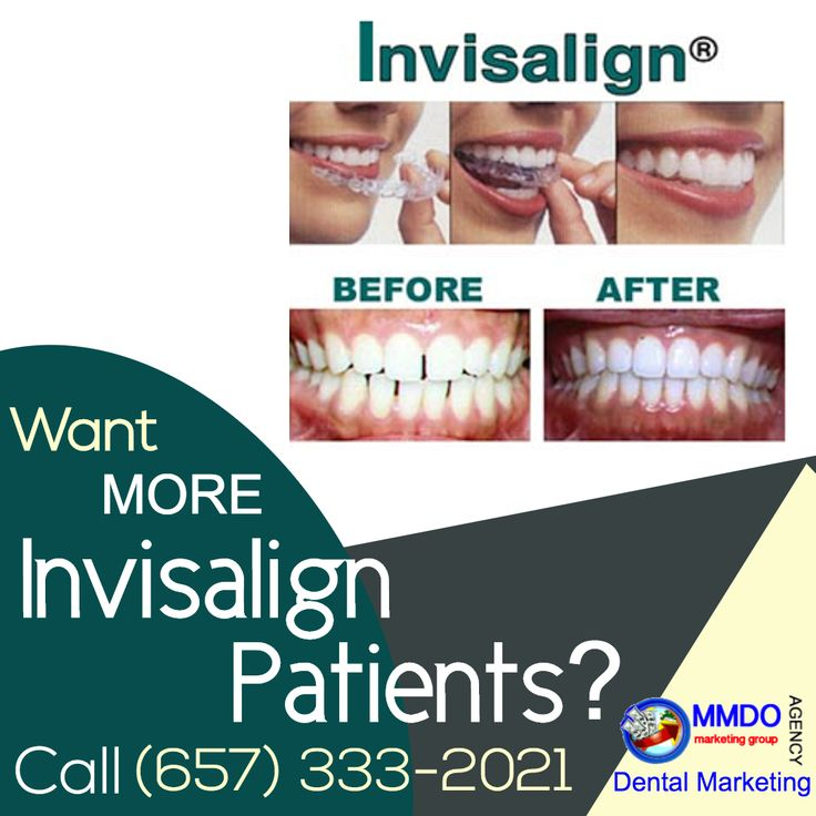 We give you the Invisalign Dentist Services in Orange County CA Get in touch for a free consultation right now at:  (657)333-2021 contact-us@mmdomarketinggroup.com Website: https://MMDOmarketing.com  https://youtu.be/HVcgiEwQhKY  A smile is the most essential part of the body that helps to define the persona of a person. For a perfect smile, we want perfect teeth and that's only possible with the assistance of Dentist in Orange County CA.  It is advisable that we should go to the nonstop…
