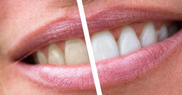 Tandblekning ny