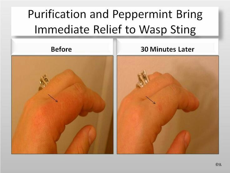 Wasp sting - Young Living