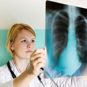Cancer and Other Possible Causes of a Spot on the Lung