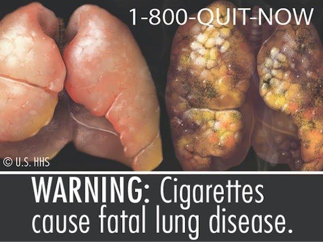 Blog Antifumat: In sfarsit nefumator - Tigari combinate Nu, ţigara combinată nu înseamnă să fumezi două....