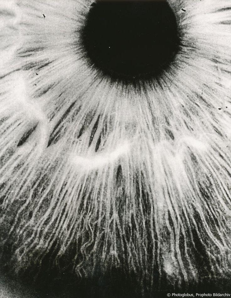 © Photoglobus, Prophoto Bildarchiv, Schau mir in die Auge...   ... und ich sage Dir, wie krank Du bist. Rund 40.000 Augenaufnahmen hat Dr. A. Markgraf aus Bad Lauterberg im Harz im Laufe von 20 Jahren auf Farbdiafilm Agfachrome CT 18 fotografiert. Als leitender Arzt eines Kneippsanatoriums und als Fachmann für Naturheilverfahren setzt er diese farbigen Fotos beim Praktizieren der Augendiagnostik ein, um später den klinischen Befund damit vergleichen zu können...
