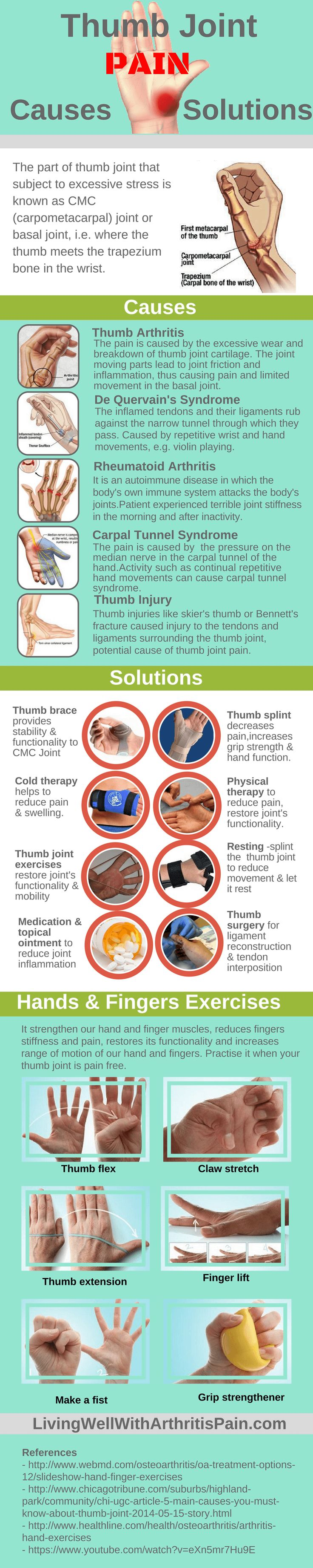 thumb-joint-pain-infographic Find it on http://Papr.Club as a Monthly Subscription
