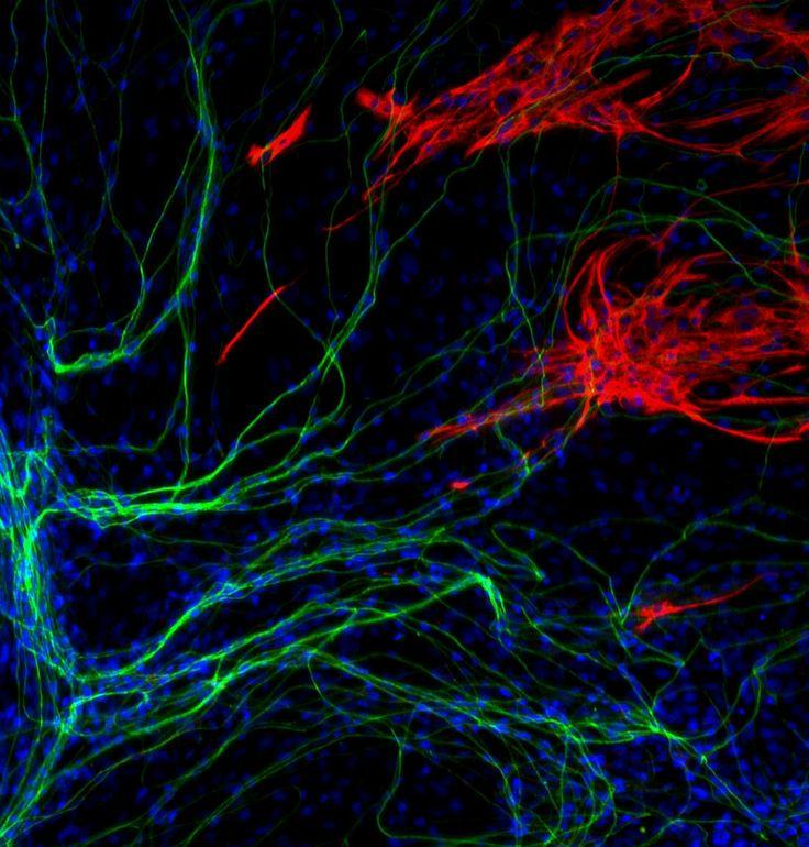 En microscopio neuronas sensoriales primarias teñidas de beta tubulina (verde), astrocitos teñidos proteína ácida fibrilar glial (rojo) y ADN (azul)