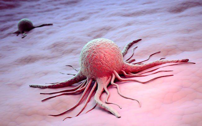 Испанские ученые выяснили, почему рак остается неизлечим
