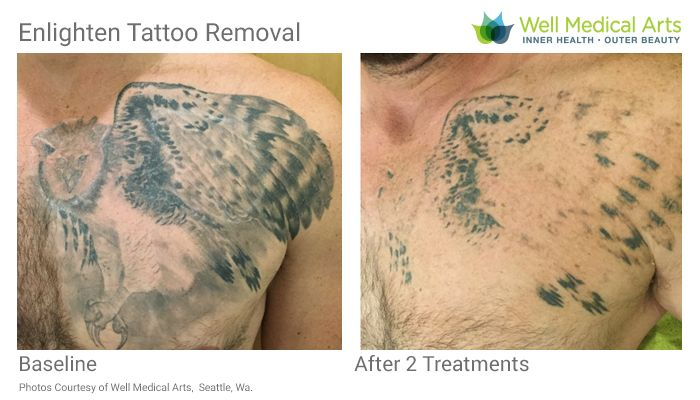 Large Chest Tattoo Removal in process. This is aftter 2 Treatements and right before Treatment #3.. Call Well Medical Arts at 206-935-5689 to schedule your consultation.