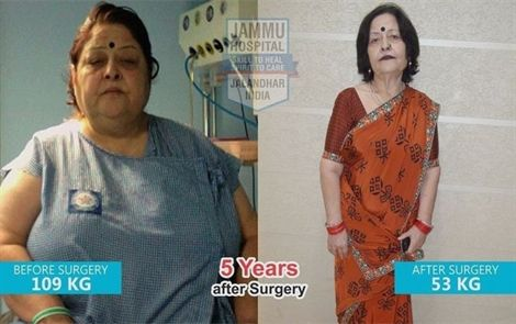 5 years after gastric sleeve