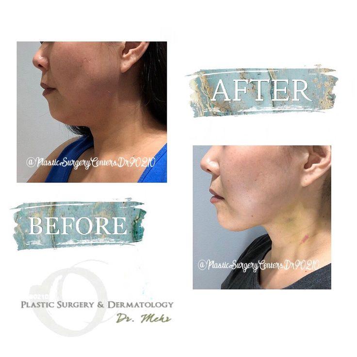 #emaildoctorlivecom #liposuction #dermatology #anesthesia #individial