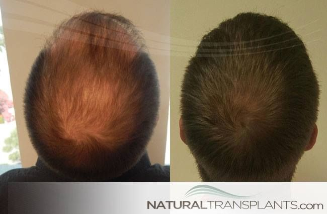 Thinning Hair Men | Hair Loss Cure
