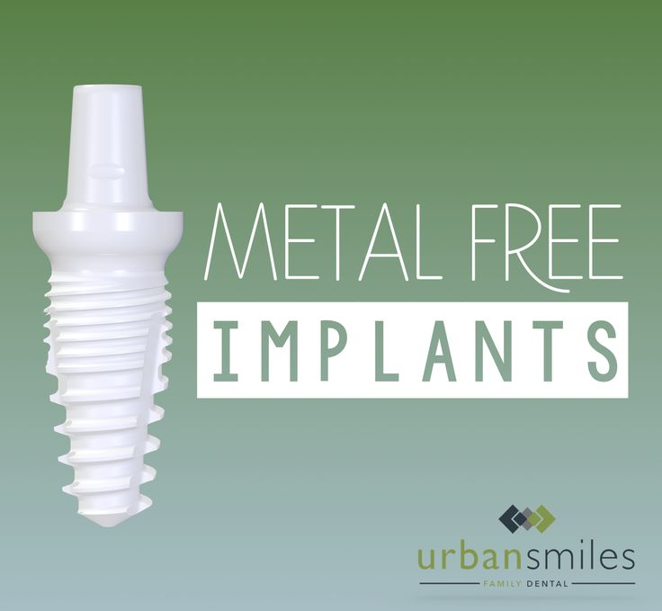 Learn more about metal free implants!  http://urbansmiles.ca/metal-free-implants/
