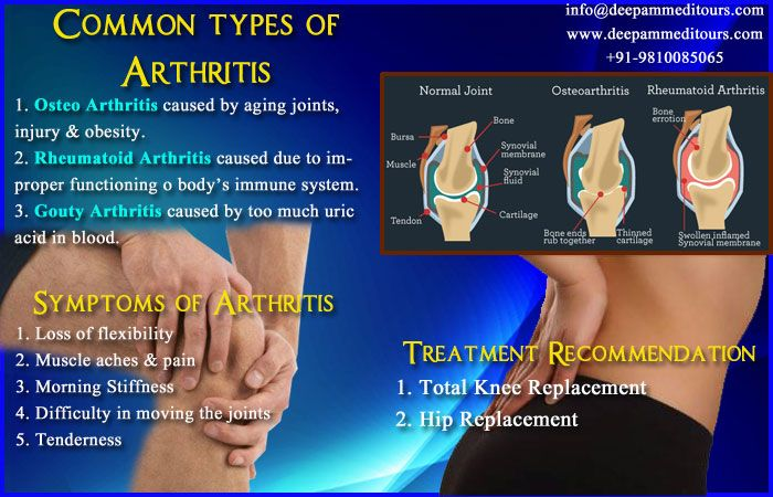 do you suffer from common types of #Arthritis. if you don't know than check symptoms and take action regarding the problem. #shoulder_surgery #elbow_surgey #tennis_elbow_surgery #total_knee_replacement