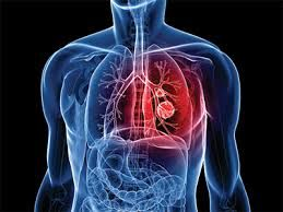 http://drpramojjindal.com/introduction-lung-abscess.html   A #lung #abscess is a #localized area of lung #suppuration, leading to necrosis of the lung #parenchyma with or without cavity #formation.