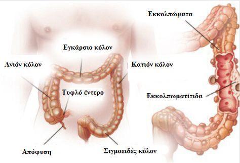 Εκκολπωματίτιδα και εκκολπωμάτωση: διάγνωση και θεραπεία